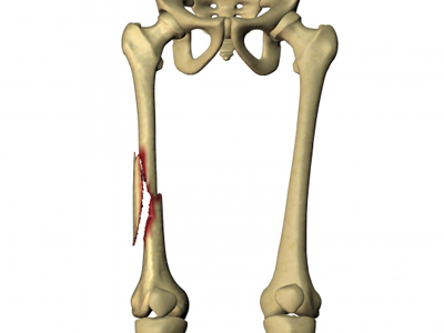 Femur Fracture