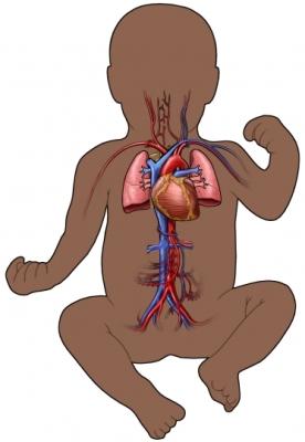 AL00079-B 97870 1 ciruclatory infant