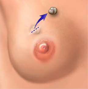 Diagram of lumpectomy