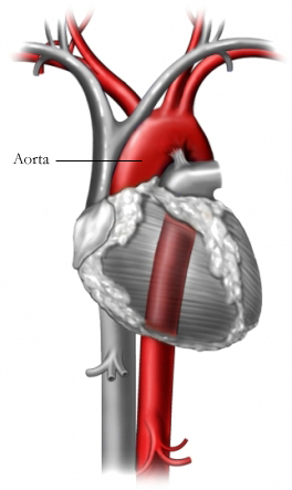 BP00015 96472 1 aorta.jpg