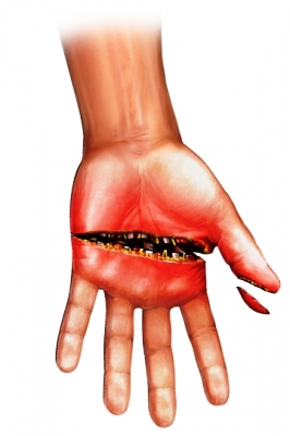 traumatismo en la mano