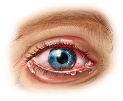 Inflamación ocular