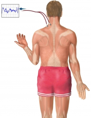 EMG shoulder 2