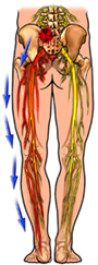 Sciatica Nerve Pain