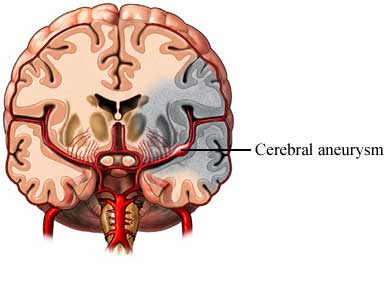 Cerebral Aneurysm