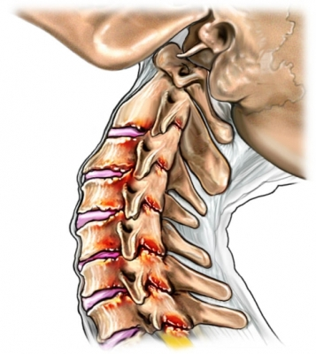 Latigazo cervical