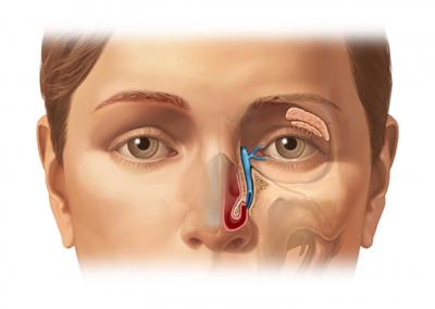 ao00127 40018 1 lacrimal duct.jpg