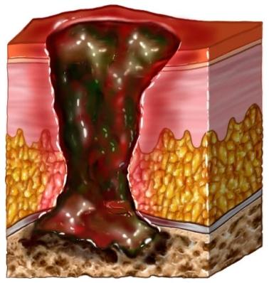 Infección ósea