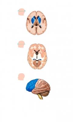 Daño cerebral por falta de oxígeno