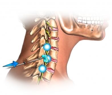 Injecci&oacute;n cervical