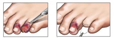 Amputación del dedo del pie por aplastamiento
