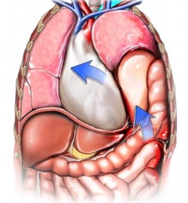 Diafragma herniado