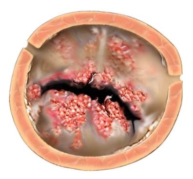 Válvula aórtica enferma