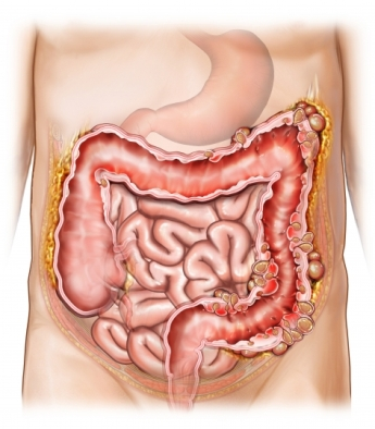 diverticulitis