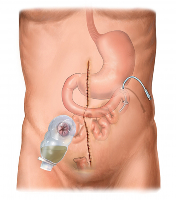 Ileostomy and Jejunostomy