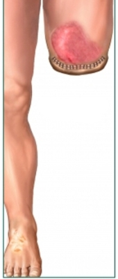 cropped leg