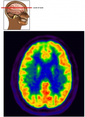 PET cerebral