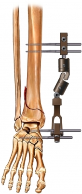 Fractura con fijaci&oacute;n de tibia