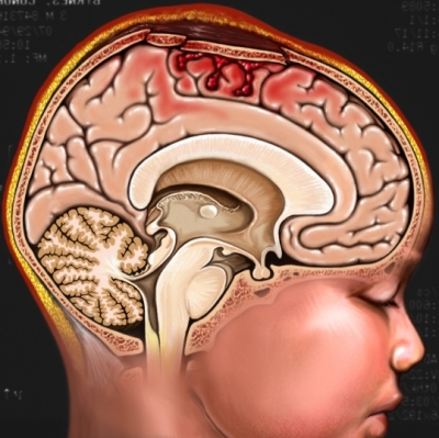Lesión en la cabeza de un menor