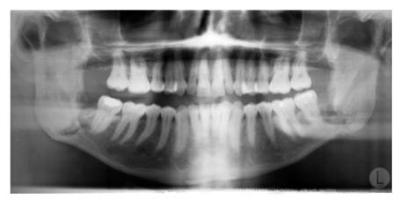 Dientes en una radiografía de mandíbula