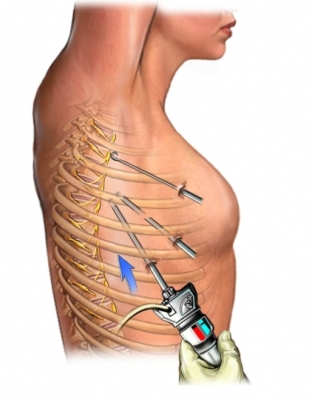 Laparascopic Thoracic