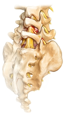 lumbar disc herniation back