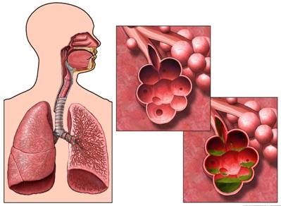 Infección del pulmón por inhalación de sustancias químicas