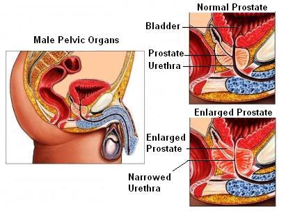 Próstata con HPB