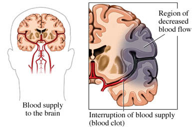 si1213 97870 1 Ischemic Stroke.jpg