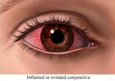 Inflamed conjunctiva