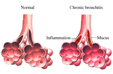 Bronquitis cr&oacute;nica
