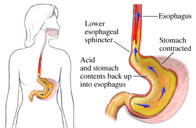 Gastroesophageal Reflux