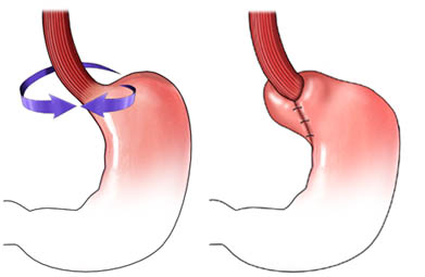 Fundoplicatura