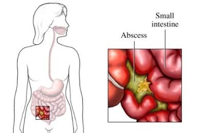 Absceso abdominal