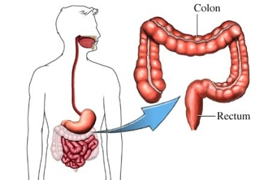 colectomy colon