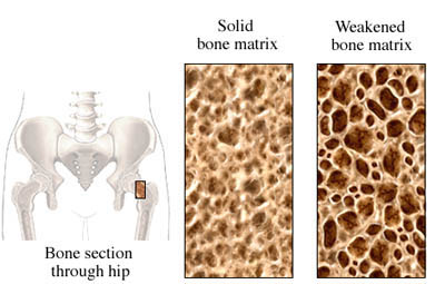 Osteoporosis