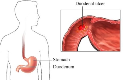 &uacute;lcera duodenal