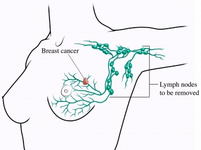lymph nodes to be removed