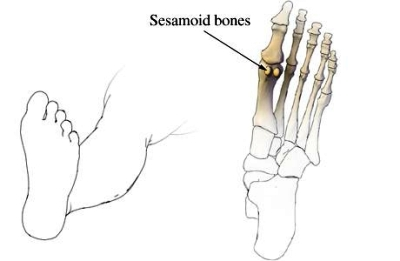 sesamoid bone foot