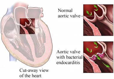 Endocarditis bacteriana, vlvula artica