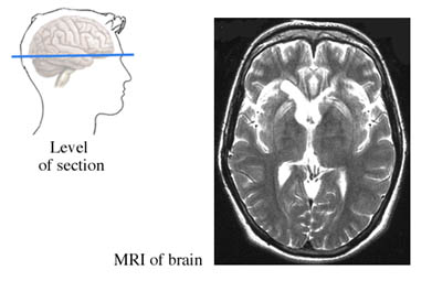 Tomograf&iacute;a de RM del cerebro
