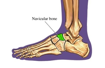 si55550253 97870 1 Navicular Bone Foot