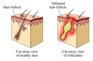 Infeccin del folculo - foliculitis