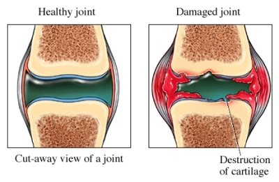 Damaged Joint