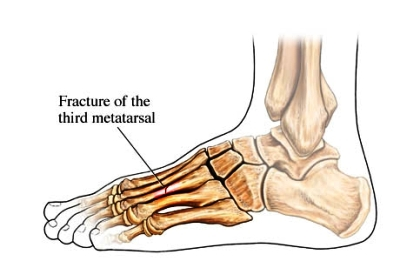 Stress fracture foot