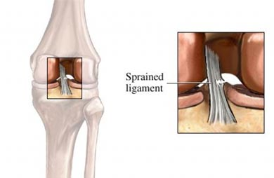 Sprained ligament knee