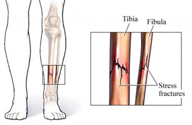 Fractura de tibia/peron&eacute;