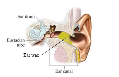 si55550929 96472 1 with ear wax