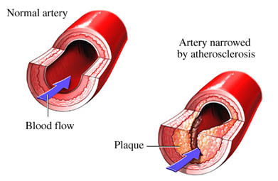 Atherosclerosis