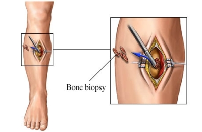 Bone biopsy